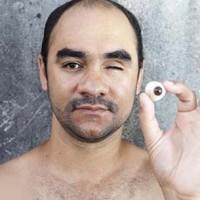Justiça culpa fotógrafo por tiro sofrido no olho